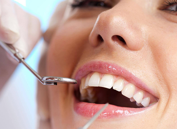 dental cleaning locust nc