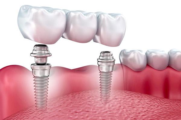Implant-Retained Bridges vs. Dentures