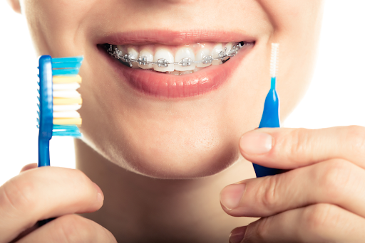 5 Reasons Why Oral Hygiene is Important