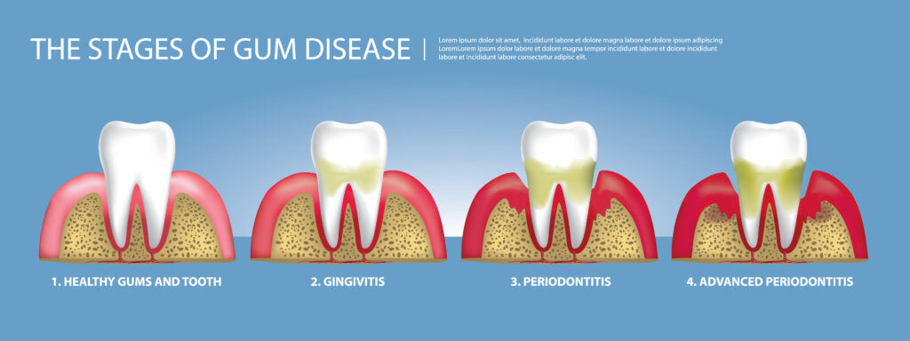 Progression of gum disease