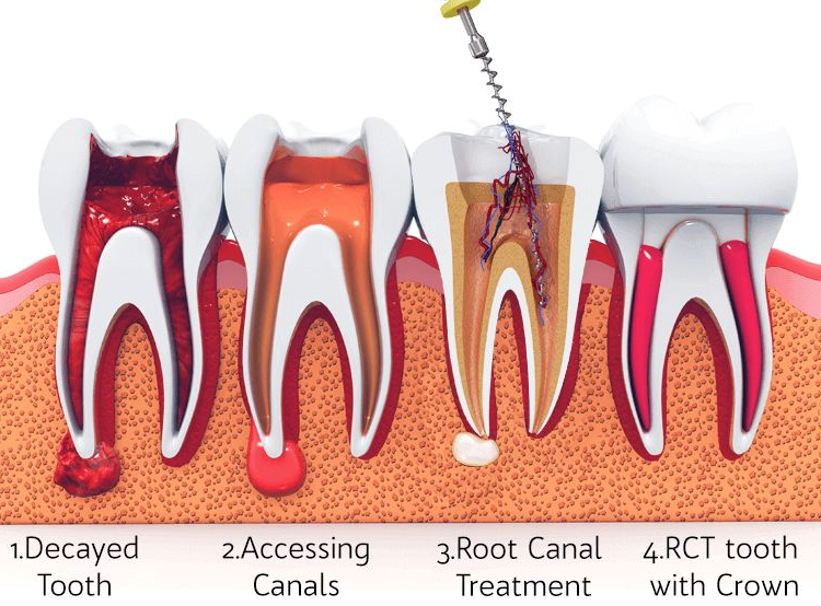 Does Root Canal Therapy Hurt?